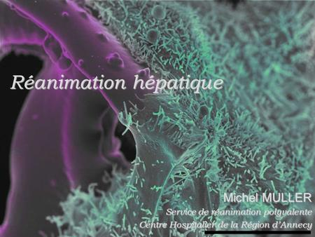 Réanimation hépatique
