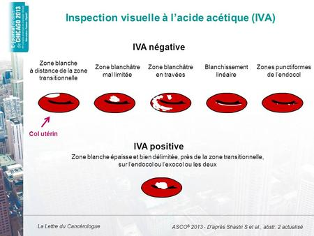 Inspection visuelle à l'acide acétique (IVA)