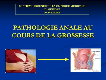PATHOLOGIE ANALE AU COURS DE LA GROSSESSE SEPTIEME JOURNEE DE LA CLINIQUE MEDICALE Dr GEUSSAB 30 AVRIL2009.