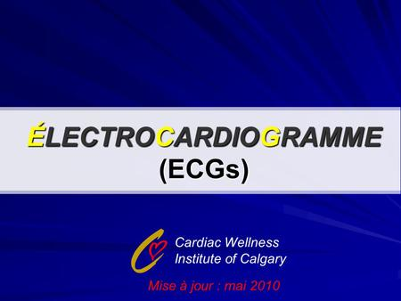 ÉLECTROCARDIOGRAMME (ECGs) Cardiac Wellness Institute of Calgary Mise à jour : mai 2010.