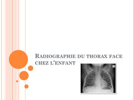 R ADIOGRAPHIE DU THORAX FACE CHEZ L ' ENFANT. P LAN I. Introduction. II. Plan d'interprétation de la radiographie du thorax. III. Conclusion.
