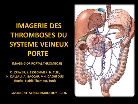 IMAGERIE DES THROMBOSES DU SYSTEME VEINEUX PORTE IMAGING OF PORTAL THROMBOSIS O. ZRAYER, S. ESSEGHAIER, H. TLILI, H. DALLALI, A. BACCAR, MH. DAGHFOUS Hôpital.