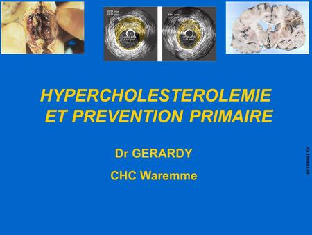 HYPERCHOLESTEROLEMIE ET PREVENTION PRIMAIRE Dr GERARDY CHC Waremme NS 1089/03-09.