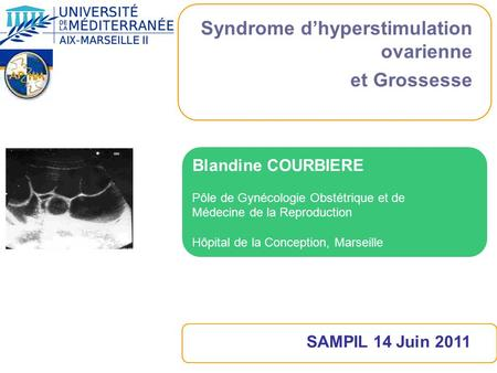 Syndrome d'hyperstimulation ovarienne et Grossesse