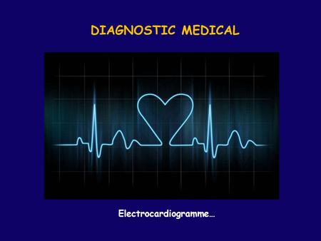DIAGNOSTIC MEDICAL Electrocardiogramme….