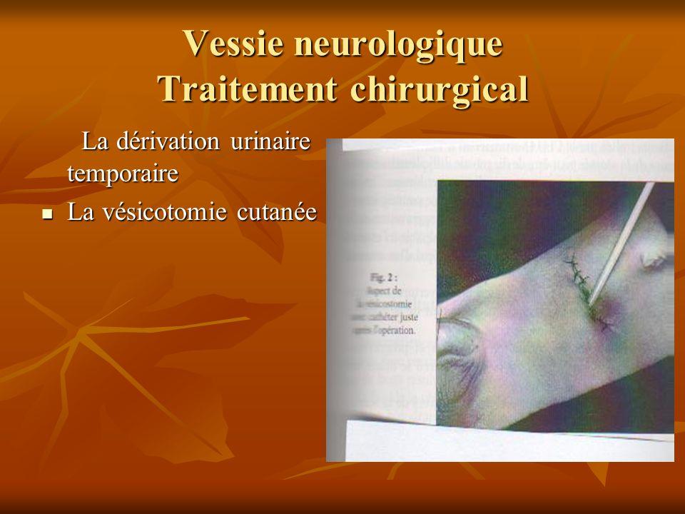Vessie neurologique Traitement chirurgical ( suite) Lurétérostomie latérale Lurétérostomie latérale Lurétérostomie cutanée terminale Lurétérostomie cutanée terminale