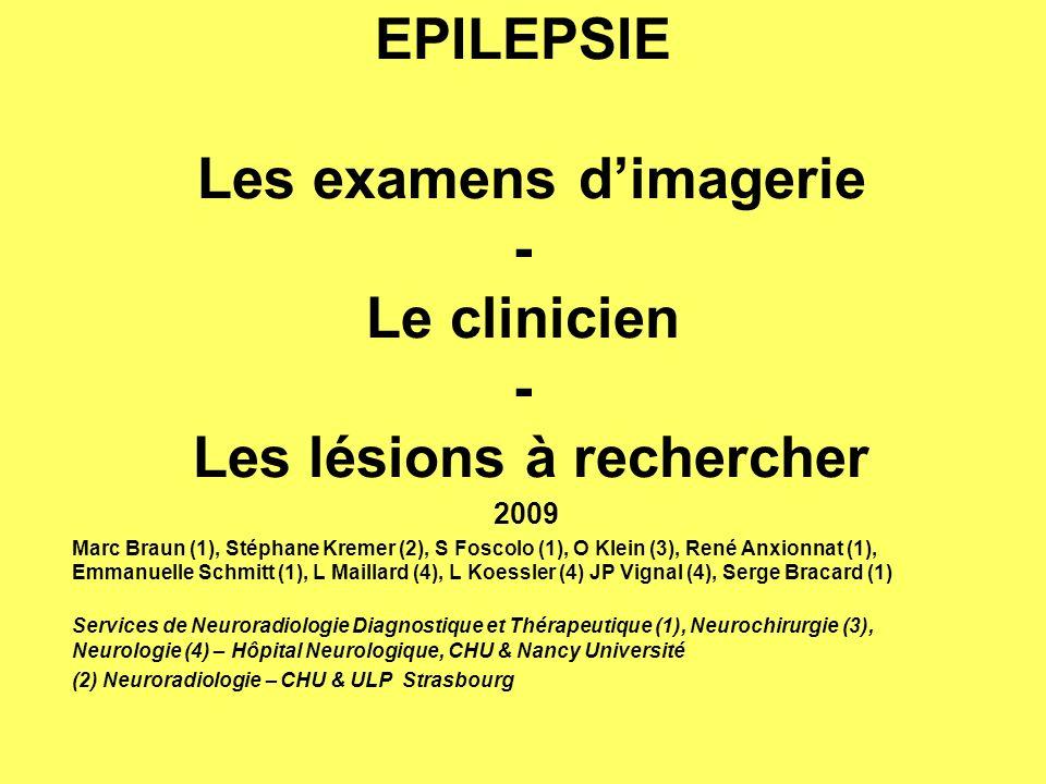EPILEPSIE PREVALENCE - INCIDENCE En Europe, un patient sur 200 individus est atteint de la maladie épileptique Incidence : UN nouveau patient sur 2000 et par an.