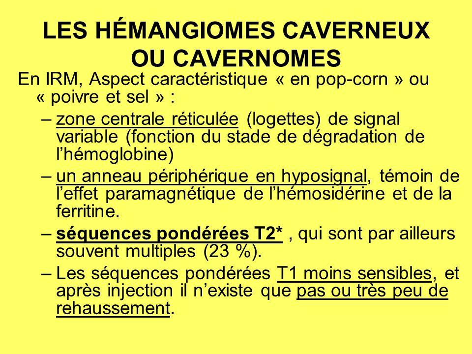 HEMANGIOME CAVERNEUX