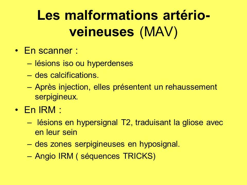 MALFORMATION ARTERIO- VEINEUSE