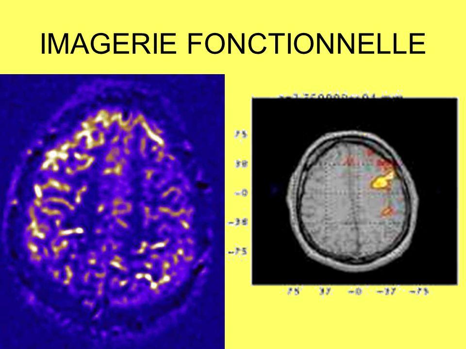 SPECT et PET-scan LE SPECT (LE FLUX SANGUIN CÉRÉBRAL) –HYPODÉBIT VASCULAIRE INTERCRITIQUE –HYPERDÉBIT en PHASE CRITIQUE LA TEP AU 18FDG OU MIEUX À LO15 LA CONSOMMATION CÉRÉBRALE DE GLUCOSE OU DOXYGÈNE HYPOMÉTABOLISME INTERCRITIQUE DU LOBE TEMPORAL 90 % DES PATIENTS PRÉSENTANT UNE ÉPILEPSIE TEMPORALE AU SEIN DU CORTEX MAIS PLUS EXTENSIVE QUE LE FOYER ÉPILEPTOGÈNE CHEZ PRÈS 70 % DES PATIENTS PRÉSENTANT UNE ÉPILEPSIE EXTRA TEMPORALE LA TEP PLUS SENSIBLE QUE LIRM POUR LA DÉTECTION DUN FOYER ÉPILEPTOGÈNE DANS LÉPILEPSIE TEMPORALE (86% CONTRE 76 % DANOMALIES RETROUVÉES), –CORRÉLÉE À UN BON PRONOSTIC APRÈS CHIRURGIE