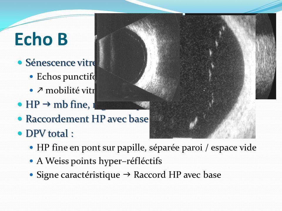 Echo (suite) DPV partiel : DPV partiel : HP décollé dans un ou +ieurs quadrants Persistance adhérence papillaires ou VR au PP Absence DPV : HP non visualisée Absence DPV : HP non visualisée Dic diff : DDR +++ (attache papillaire, mobilité, + échogène Dic diff : DDR +++ (attache papillaire, mobilité, + échogène