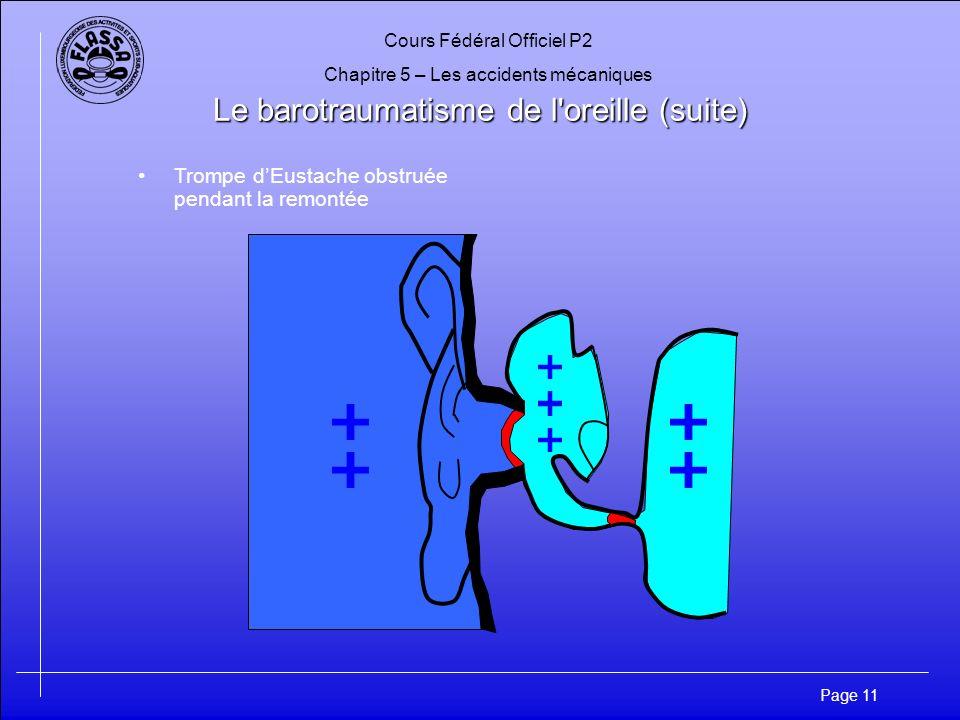 Cours Fédéral Officiel P2 Chapitre 5 – Les accidents mécaniques Page 12 Le barotraumatisme de l oreille (suite) Trompe dEustache obstruée pendant la remontée