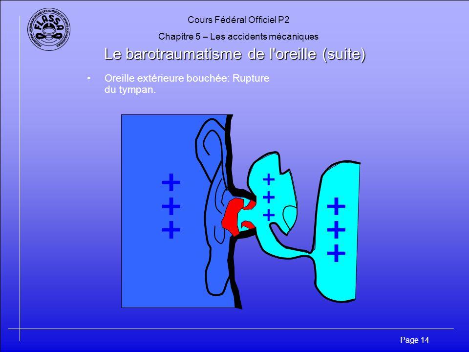 Cours Fédéral Officiel P2 Chapitre 5 – Les accidents mécaniques Page 15 Le barotraumatisme de l oreille (suite) Symptomes: –Douleur pouvant entraîner la syncope –Des vertiges s installent Prévention: –Ne pas plonger enrhumé –Équilibrer dès le plongeon en canard –Renoncer à lutilisation de sprays nasales –Si l équilibrage ne peut se réaliser, renoncer à la plongée Vertiges: Trompe dEustache dune oreille est obstruée Risques dinfection –Risque dotite interne –Infection de loreille externe après la plongée –Infection de loreille externe à cause du froid