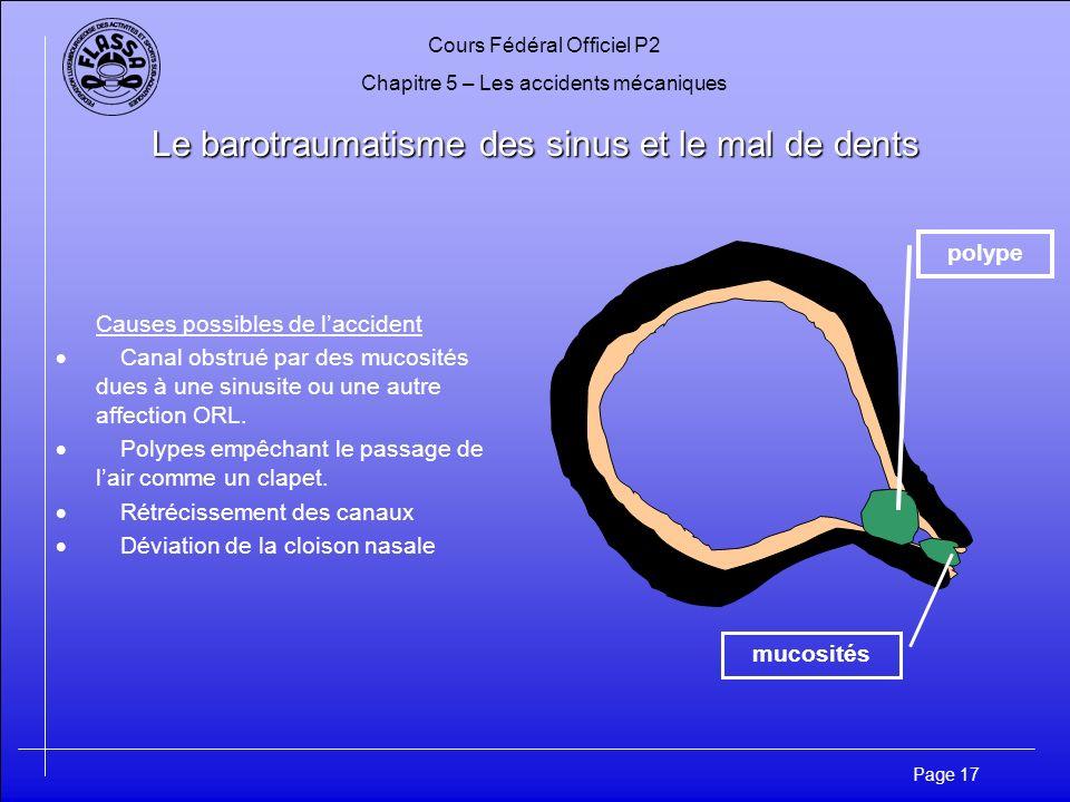 Cours Fédéral Officiel P2 Chapitre 5 – Les accidents mécaniques Page 18 Le barotraumatisme des sinus et le mal de dents A la descente Laugmentation de la pression crée une dépression à lintérieur du sinus.