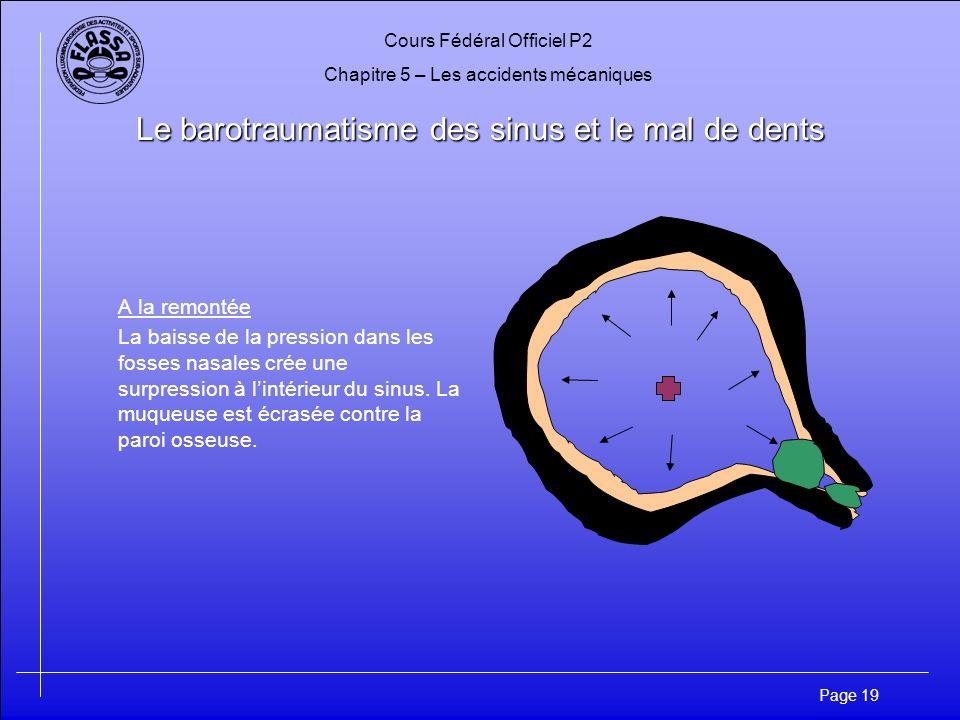Cours Fédéral Officiel P2 Chapitre 5 – Les accidents mécaniques Page 20 Le barotraumatisme des sinus et le mal de dents –Symptômes: Douleur, saignements du nez,sensations de dents arrachées.