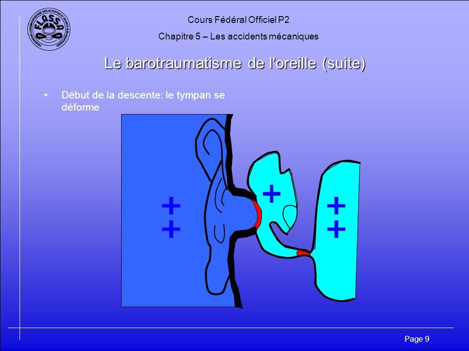 Cours Fédéral Officiel P2 Chapitre 5 – Les accidents mécaniques Page 10 Le barotraumatisme de l oreille (suite) Rupture du tympan à partir de 2 mètres de profondeur