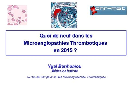 Microangiopathies Thrombotiques
