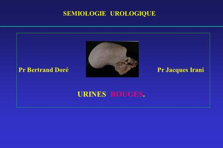 SEMIOLOGIE UROLOGIQUE Pr Bertrand Doré Pr Jacques Irani URINES ROUGES.