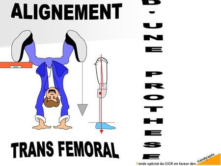 ALIGNEMENT D'UNE PROTHESE TRANS FEMORAL.