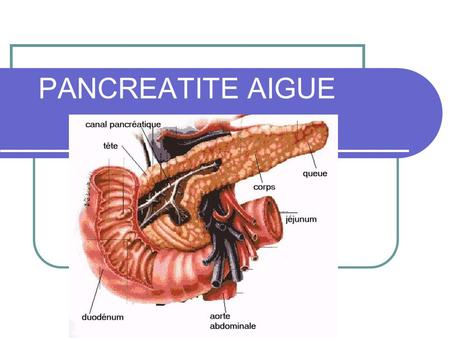 PANCREATITE AIGUE. Définition anatomique Inflammation aigue de la glande pancréatique allant de l'œdème (cliniquement bénigne) jusqu'à la nécrose pancréatique.