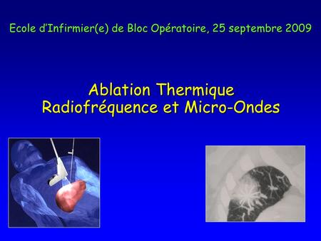 Ablation Thermique Radiofréquence et Micro-Ondes