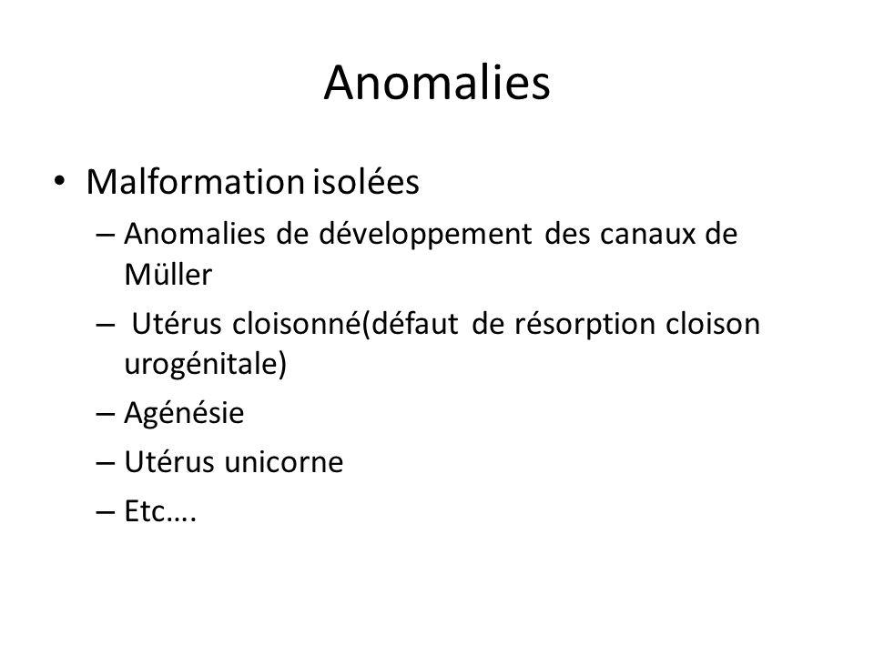 Anomalies Dysgénésies gonadiques développement anormal des gonades Monosomie X (45,X0)saccompagne dégénération des gonocytes,dev folliculaire anormal, canaux de Müller infantiles Klinefelter(47,XXY)Gynécomastie, phénotype masculin,cryptorchidie,virilisation incomplète