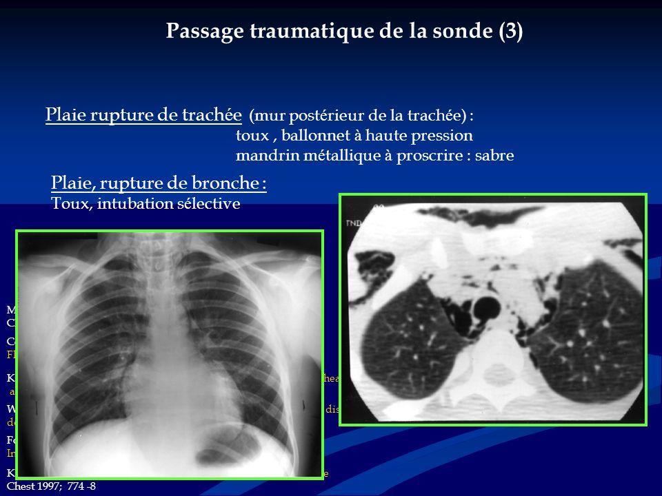 Apr è s l intubation ….