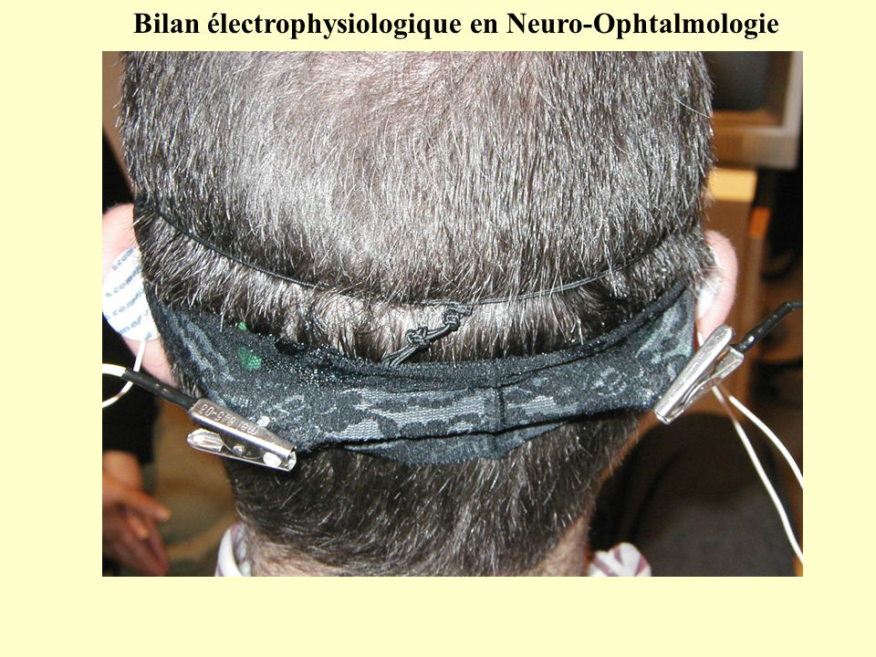 Port de la correction optique optimale de loin Bilan électrophysiologique en Neuro-Ophtalmologie
