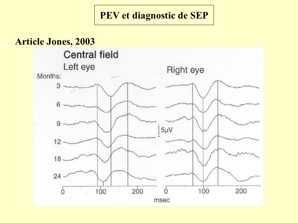 PEV et diagnostic de SEP Article Diem, 2003