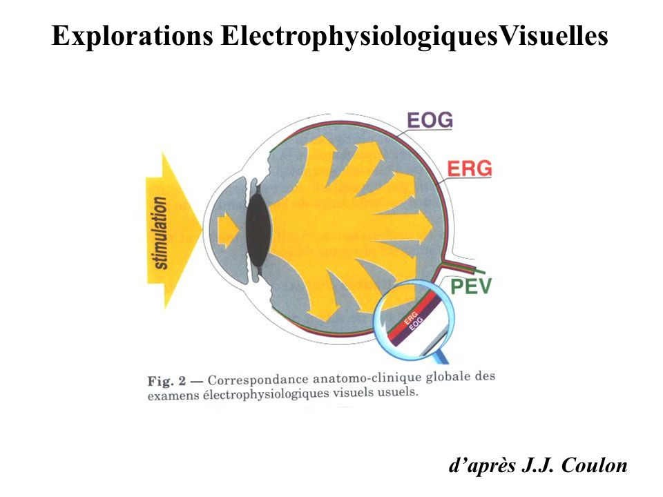 ERG 1/ ERG court 2/ ERG ISCEV : protocole international standardisé 3/ ERG pattern 4/ ERG multifocal