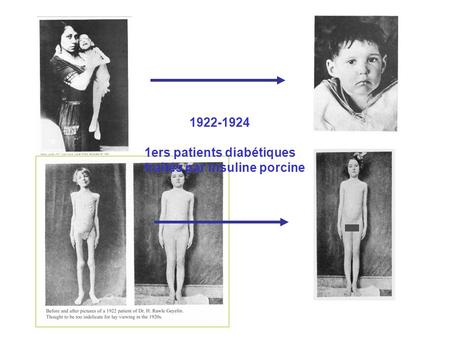1922-1924 1ers patients diabétiques traités par insuline porcine.