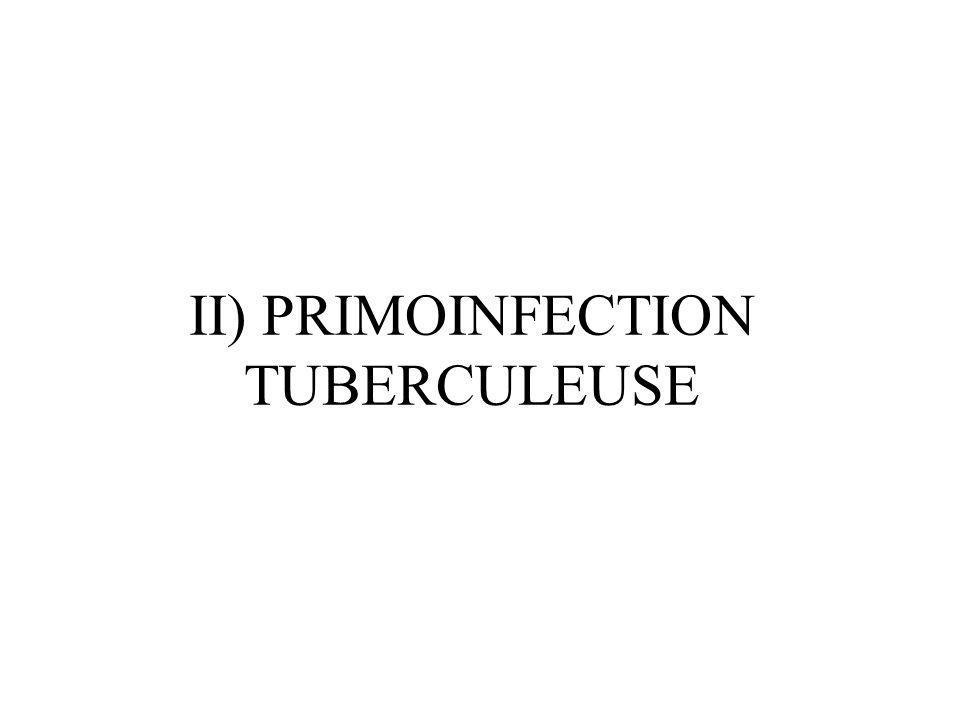 PRIMOINFECTION TUBERCULEUSE (1) 1er contact avec le bacille Déposition alvéolaire de quelques bacilles = chancre dinoculation (foyer primaire) Multiplication dans les macrophages alvéolaires après phagocytose puis drainage vers le ganglion hilaire satellite puis dissémination (foyers IIaires) Mise en place dune réponse à médiation cellulaire Accumulation de cellules monocytaires dallure épithélioïde avec couronne de lymphocytes et nécrose caséeuse