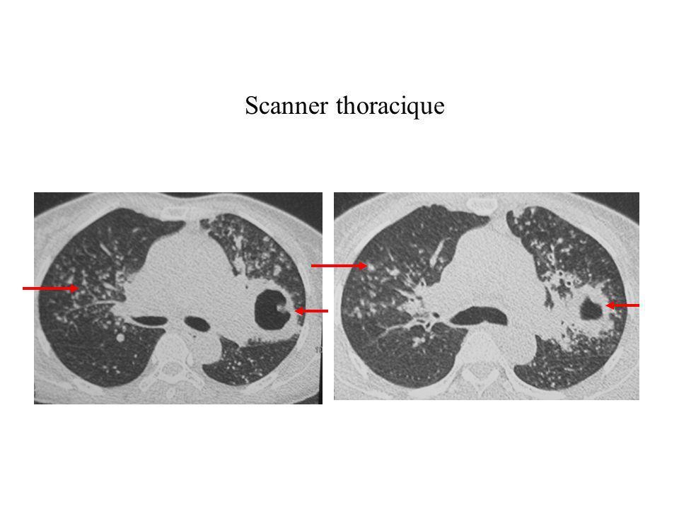 IMAGERIE Lésions séquellaires : - lésions cavitaires parenchymateuses - fibroses rétractiles - emphysème paracicatriciel