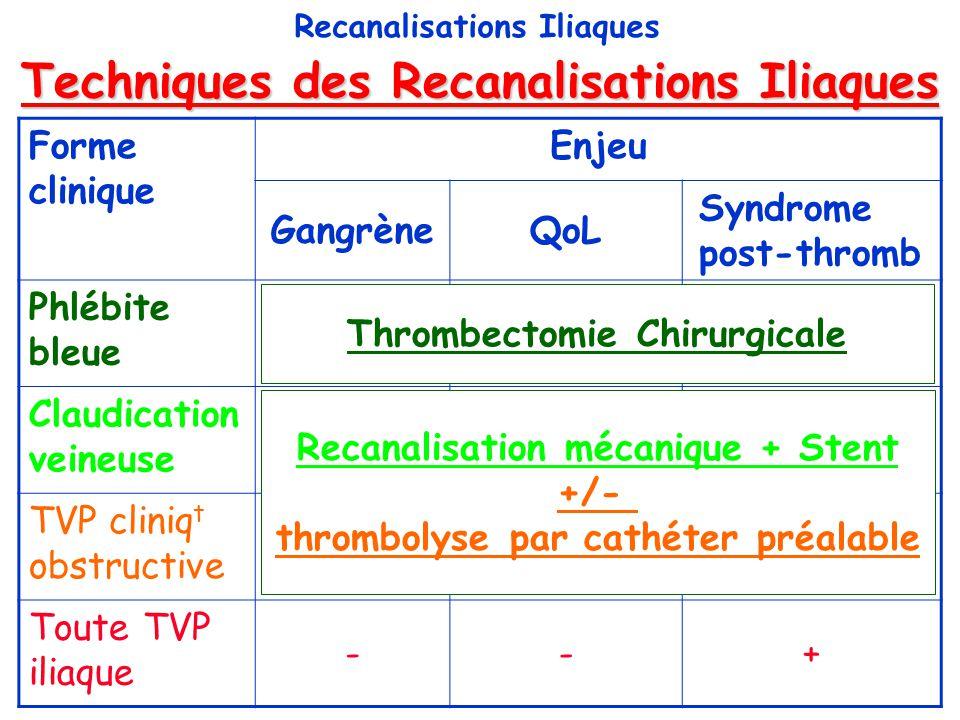 Protocole Antithrombotique Recanalisations Iliaques Pas de consensus 1.Anticoagulant = quasi-constant 3 à 6 ms HNF puis HBPM puis AVK 2.Antiplaquettaire = aspirine (sf pb digestif) durée = .
