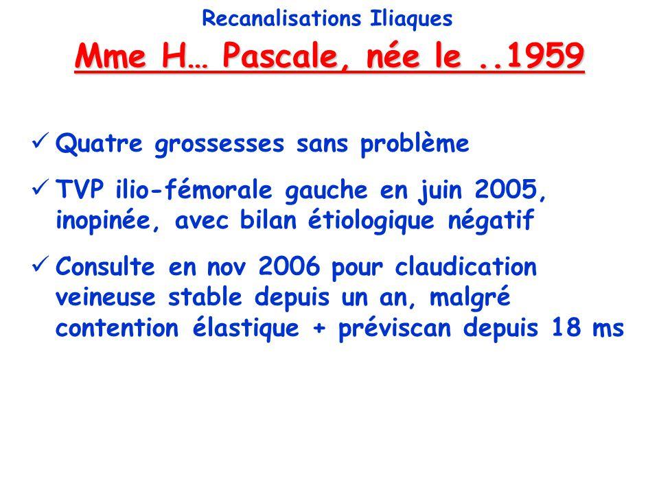Mme H… Pascale, née le 24/08/59 Recanalisations Iliaques Test de Strandness veineux .