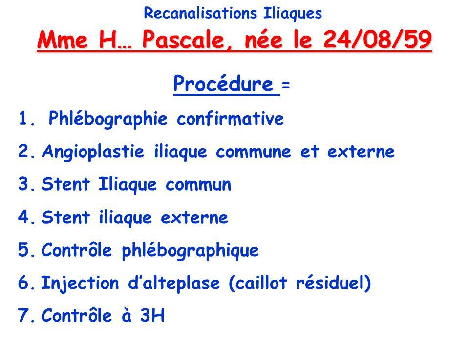 Mme H… Pascale, née le 24/08/59 Recanalisations Iliaques