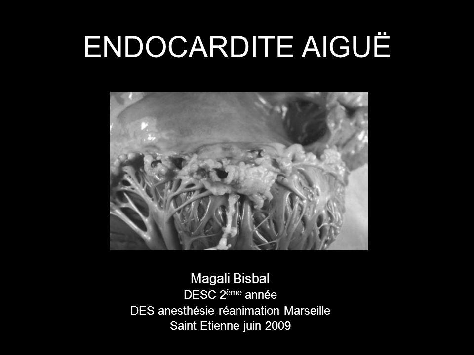 Endocardite non infectieuse Endocardite de Libman-Sacks SAPL, Lupus systémique Endocardite fibroblastique Hyperéosinophilie essentielle Endocardite marastique Adénocarcinome métastasé Letranchant RevMedInt 2005;26:189