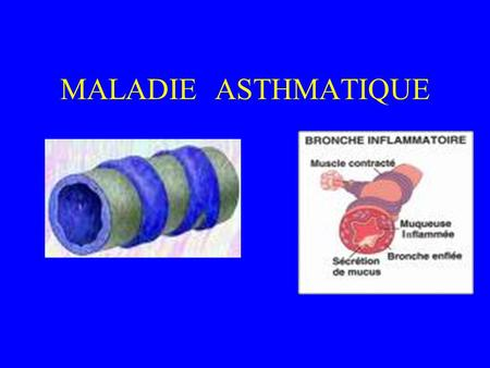 MALADIE ASTHMATIQUE. MALADIE ASTHMATIQUE DEFINITIONS: DEFINITION CLINIQUE - une dyspnée sifflante - variable récidivante volontiers nocturne - réversible.