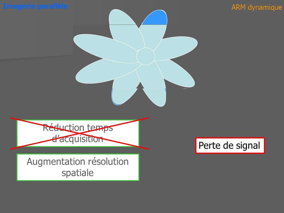 K-Space 1 2 Imagerie parallèle ARM dynamique SENSE ASSET iPAT Domaine Image Domaine Fréquentiel SMASH GRAPPA Séquences Avant PF Après PF