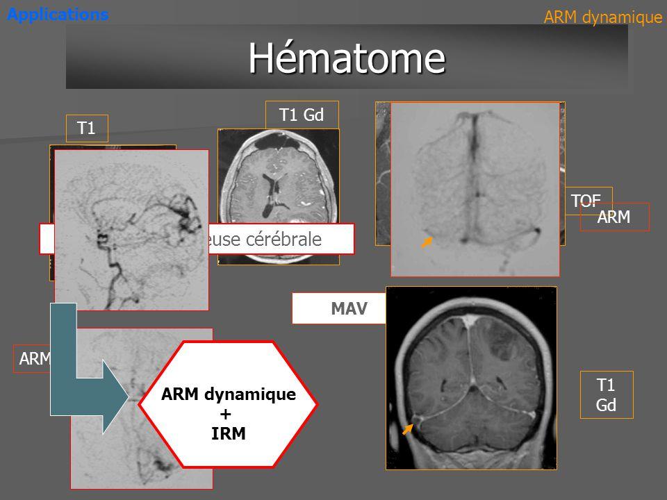 ARM dynamique 3D haute résolution Combinaison de 2 ARM rapides 3T ARM dynamique 3D Evolutions Produit de contraste intravasculaire ARM dynamique