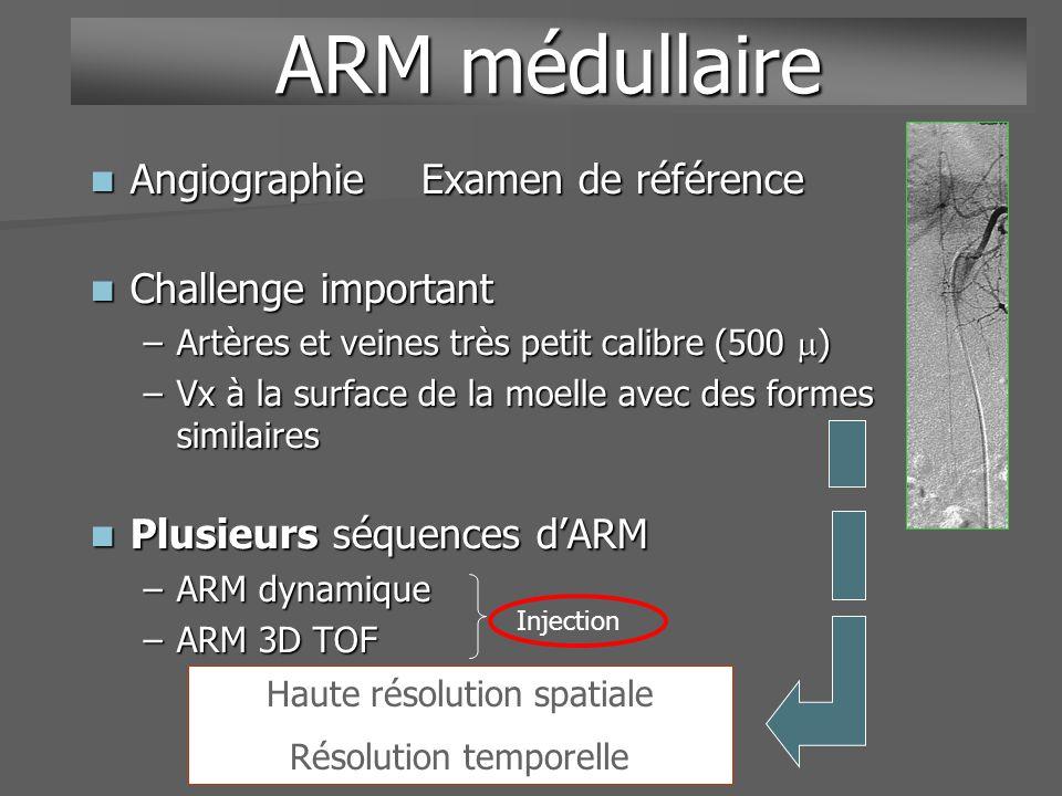 ARM dynamique multiphase ARM écho de gradient ARM écho de gradient –Rapide 15 secondes/phase –Voxel 1 mm –Voxel 1 mm Multiphases Multiphases –Première phase non injectée –Trois phases suivantes ARM médullaire ArtérielleIntermédiaireVeineuse Soustraction Techniques