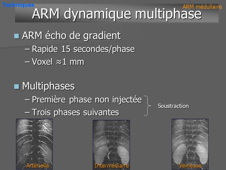 Artère médullaire antérieure Veine médulloradiculaire antérieure ARM dynamique multiphase ARM dynamique multiphase ARM médullaire Temps artériel Temps veineux Techniques