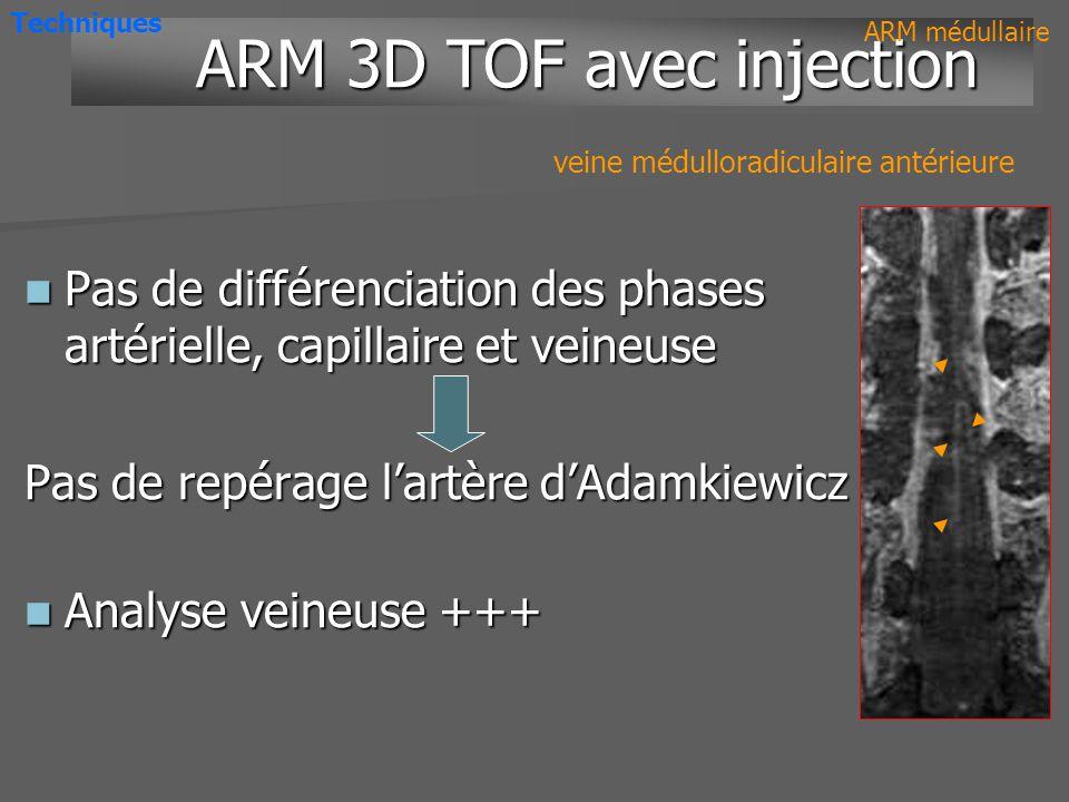 ARM dynamique multiphase TOF 3D injecté TA15s8mim Pixel 1mm1mm 0.5mm0.5mm Axial-++ Artères++/- Nidus++ Veines++++ Résolution spatiale Comparaison Comparaison ARM médullaire Techniques Résolution temporelle