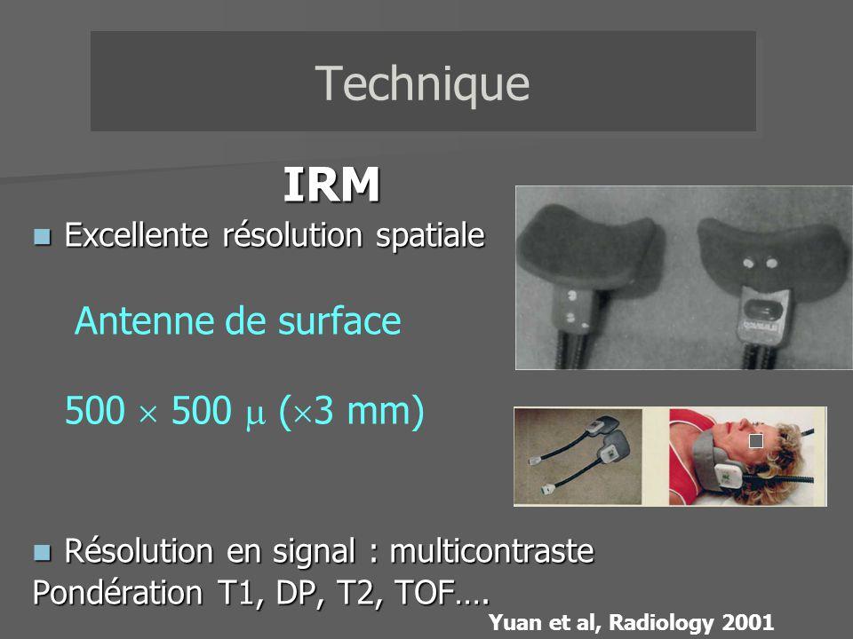 Repérage en 2D TOF de la bifurcation carotidienne Imagerie multicontraste : 1 séquence en « sang blanc » TOF 1 séquences en «sang noir » T1 DP T2 T1 DP T2 TOF Technique FAT-SAT Gatting ECG