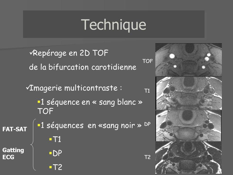 TOFT1DPT2 Tissu fibreux HypoIsoHyper Hyper Caractérisation de la plaque Densité protonique Temps de vol T1 T2