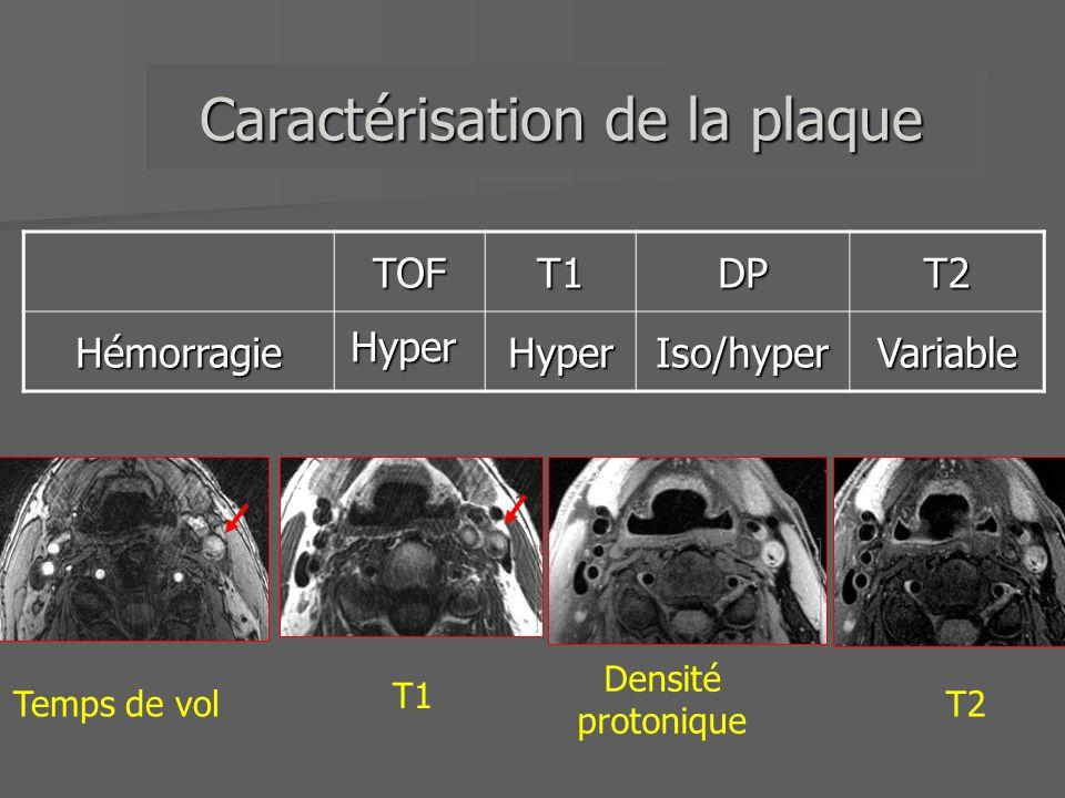 TOFT1T1-T2T2CalcificationHypoHypoHypo Hypo Caractérisation de la plaque Densité protonique Temps de vol T1T2