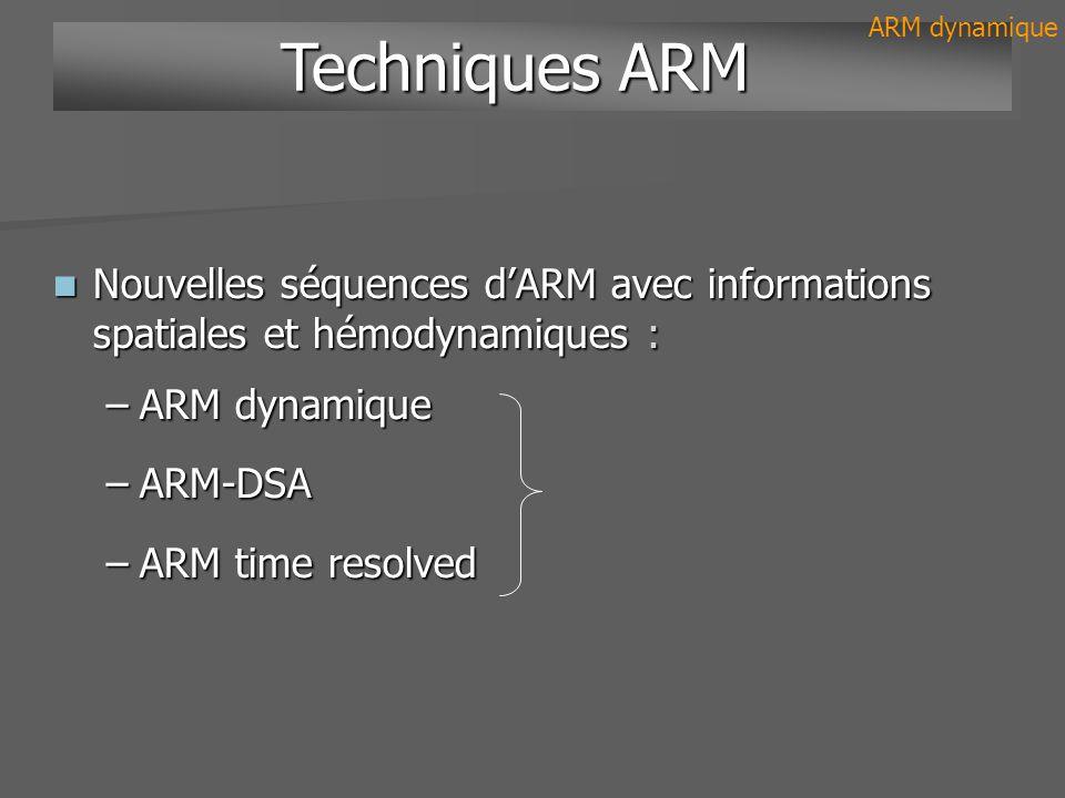 –Répétition toutes les 1- 2 secondes –Résolution spatiale 1mm, non isotropique 1mm, non isotropique –Acquisitions multiples par plans : sagittal, coronal, axial sagittal, coronal, axial –10-ml de gadolinium bolus à 3 ml/sec 5 Principes ARM dynamique IRM + ARM dynamique