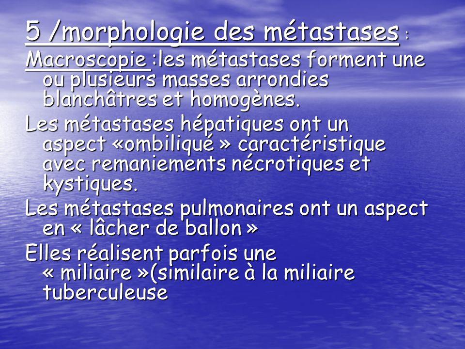 Histologie :les métastases sont de même nature que la tumeur primitive avec un degrés de différentiation varie : -plus différencie que le cancer primitif, elles permettent de le reconnaître -moins différencie que le cancer primitif ou encore anaplasique ; le diagnostic du cancer primitif à lorigine de la métastase est alors difficile (il nécessite de recourir à limmunohistochimie )