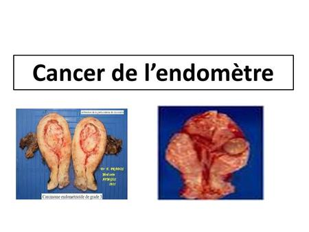 Cancer de l'endomètre.