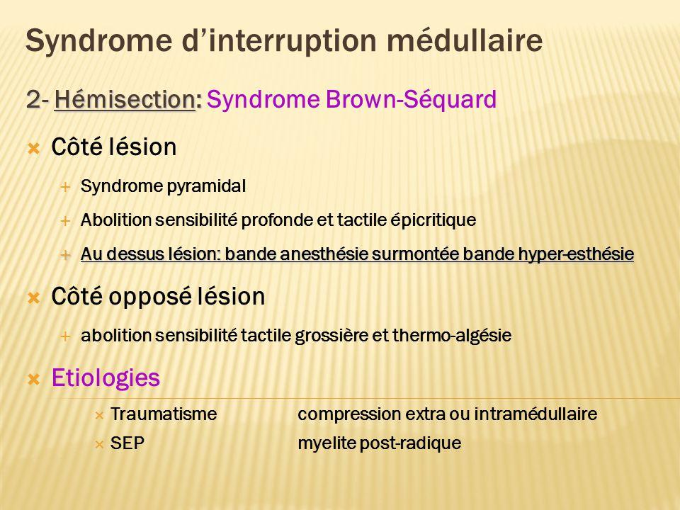 Syndrome Brown-Séquard